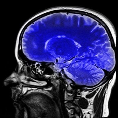 Personal Injury Attorneys | Traumatic Brain Injury: Treating Problems and Preventing Further Damage